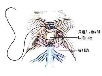 男性经常喝牛奶易患前列腺癌