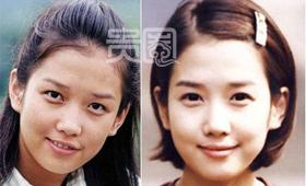 韩国艺人整容是平常事,郑多彬对比图