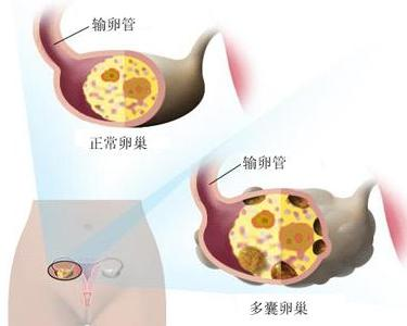 多囊卵巢综合征表现_多囊卵巢综合征 - 搜狗百科
