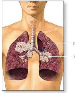肺癌骨转移
